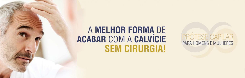 Eternus Hair System - Prótese Capilar em São Paulo