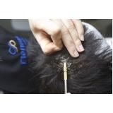 manutenção de peruca entrelaçada na Mooca