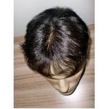 onde encontrar prótese para cabelo masculino em Glicério
