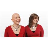peruca feminina para alopécia na Vila Mariana