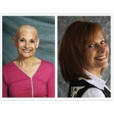 peruca natural para quem faz quimioterapia em Praia Grande