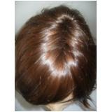 perucas front lace baratas preço no Bom Retiro