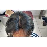 perucas masculinas que imitam couro cabeludo na Cantareira