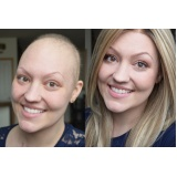 perucas para tratamentos de quimioterapia em Rio Claro