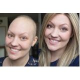 perucas para tratamentos de quimioterapia no Jardim América