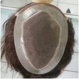 prótese capilar que imita couro cabeludo em Juquitiba