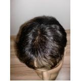 prótese de cabelo natural masculino em São Lourenço da Serra