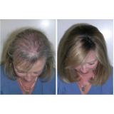 prótese para cabelo em Itupeva