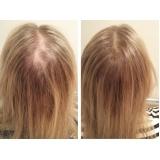 prótese capilar para cabelos ralos