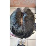 próteses para cabelo masculino em São José dos Campos