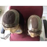 quanto custa peruca feminina para alopécia em São Carlos