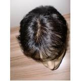 quanto custa peruca masculina que imita couro cabeludo em Jaboticabal