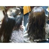 quanto custa prótese capilar para cabelos ralos na Vila Gustavo