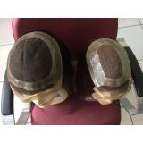 quanto custa prótese capilar parcial feminina em Aricanduva