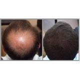 quanto custa prótese capilar que imita couro cabeludo no Campo Grande