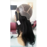 quanto custa prótese de silicone para cabelo na Lapa