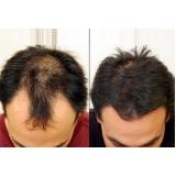 venda de peruca masculina que imita couro cabeludo no Centro