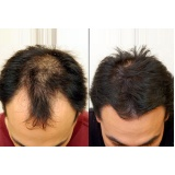 venda de peruca masculina que imita couro cabeludo na Vila Clementino