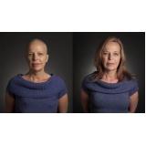 venda de perucas naturais para quimioterapia na Saúde