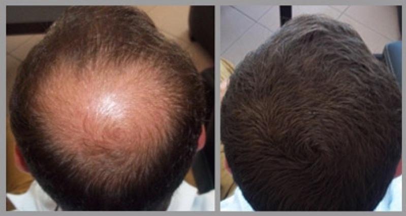 Resultado de imagem para peruca masculina